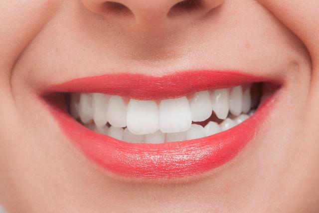 前歯の審美歯科(セラミック)治療